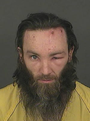 This booking photo shows Joshua Cummings hours after he was arrested following the fatal shooting of a Denver transit officer. Cummings, who appeared in court Friday morning, still has a swollen eye, which prosecutors said was caused by an infection.
