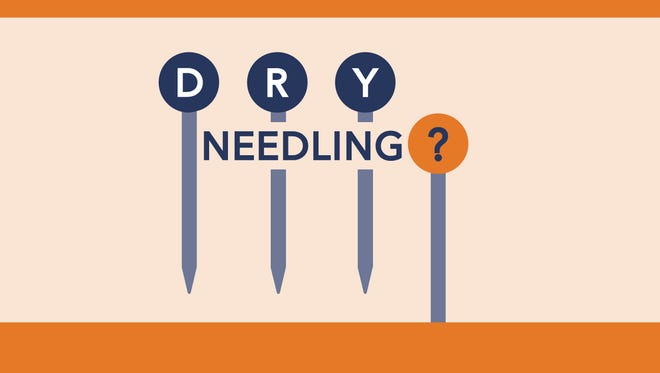 Treating pain: Dry needling lives up to its name