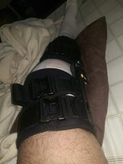 Former Spackenkill football player Andres Blanco was immobile with his knee in a brace following knee surgery.