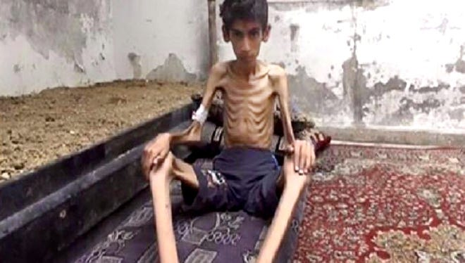 This undated photo posted on the Local Revolutionary Council in Madaya, which has been verified and is consistent with other AP reporting, shows a starving boy in Madaya, Syria.
