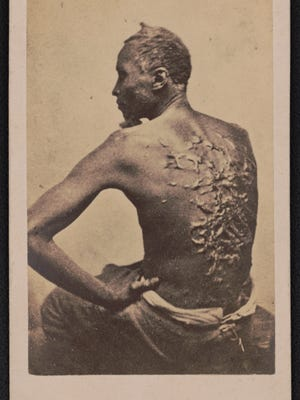 "Escaped slave Gordon, also known as ""Whipped Peter,"" showing his scarred back at a medical examination, Baton Rouge, Louisiana in 1863."