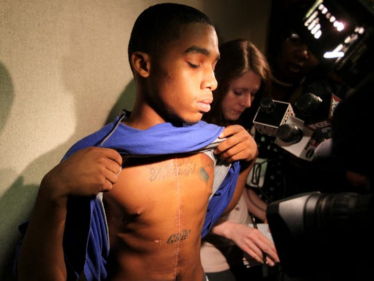 Etwan Wilson, 17, of Flint shows off his wound from a stabbing by Elias Abuelazam, 33.