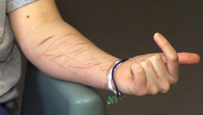 Self-mutilation scars