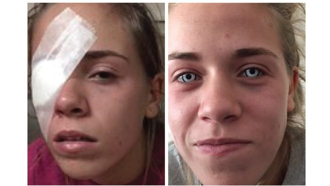 Leah Carpenter suffered an eye injury after buying colored lenses.