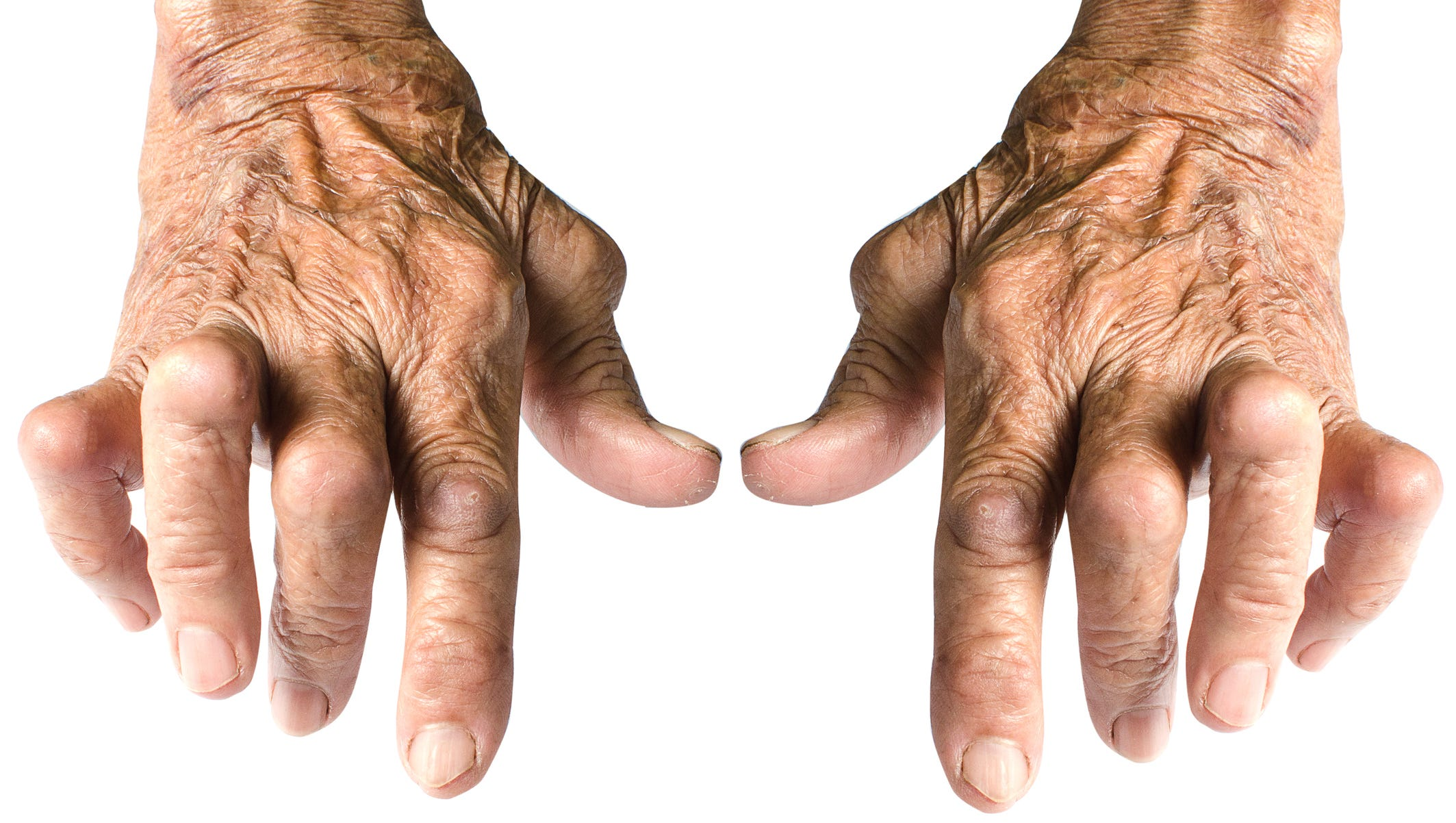 Over Time Rheumatoid Arthritis Can Lead To Deformities