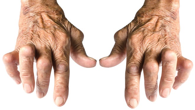 Rheumatoid arthritis usually starts with joint pain and swelling.