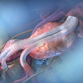 Groundbreaking vascular technology dramatically  improves surgery outcomes