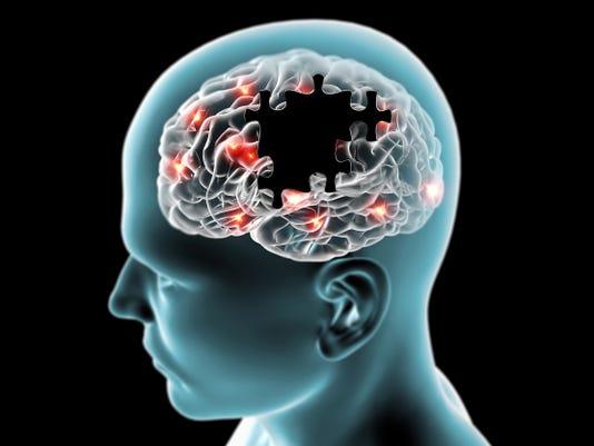 brain stock 2.jpg