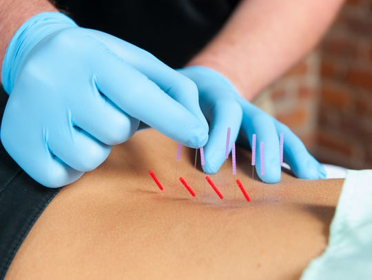 Using a needle, a physical therapist goes into tight