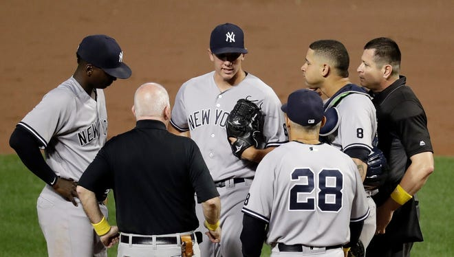 New York Yankees starting pitcher Chad Green, center, is relieved by New York Yankees manager Joe Girardi (28) during the second inning of a baseball game against the Baltimore Orioles in Baltimore, Friday, Sept. 2, 2016.