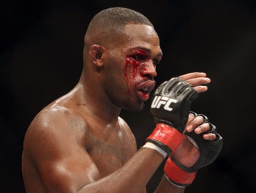 Blood bleeds from a cut on the eye of Jon Jones during his fight against Alexander Gustafsson (not pictured) during their light heavyweight championship bout at UFC 165 at the Air Canada Centre.