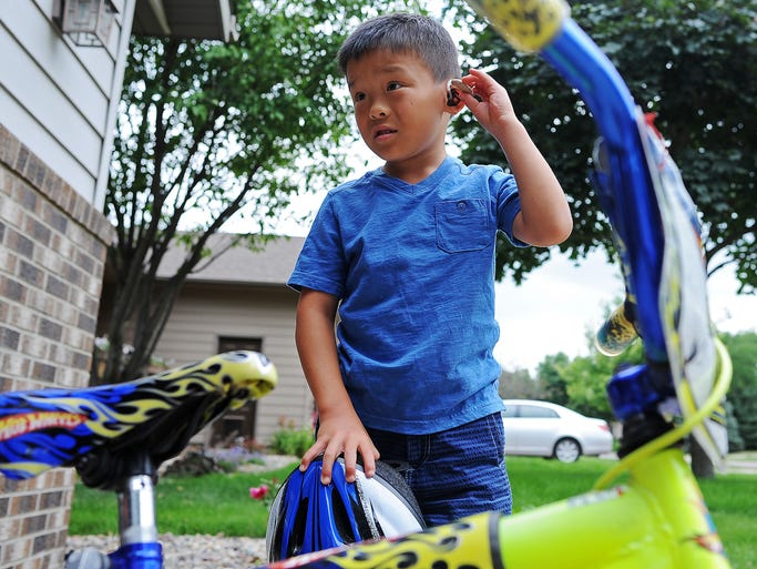 Aiden Sturgeon, 6, who is clinically deaf and starting kindergarten this fall at Harvey Dunn Elementary School, takes his hearing aid out after it got caught on his bike helmet on Thursday, July 31, 2014, before riding his bike outside his home in Sioux Falls, S.D.