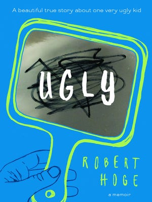 """Ugly"" by Robert Hoge"