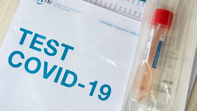 A COVID-19 test is ready to be send to a laboratory after a medical worker took a swab at a drive-in coronavirus testing facility in front of the 'eHnv' (Etablissements Hospitaliers du Nord Vaudoi) hospital in Yverdon-les-Bains, Switzerland, Thursday, April 30, 2020. Countries around the world are taking increased measures to stem the widespread of the SARS-CoV-2 coronavirus which causes the Covid-19 disease.