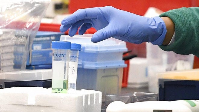 File photo. Cleveland-based biotech firm Athersys just received Ohio tax credits that will allow the biotech company to create 400 new jobs at its facility in Stow.