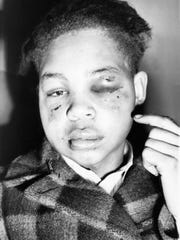 Lamar Howard, 19, of Monroe, Georgia, points to bruises he reports to have received in Atlanta on Jan. 2, 1947, from two white men. Howard said they tried to force from him his testimony before a federal grand jury investigating the lynching of four black men near Monroe the summer before.
