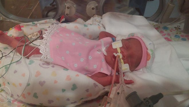 Sophia Reynolds was born in August, weighing 1 pound 2 ounces. She is now 7 weeks old and  weighs around 2.5 pounds. She's suffered complications since birth and will stay at Nationwide Children's Hospital in Columbus until December.