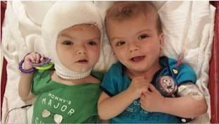 Twins Jadon and Anias McDonald, formerly joined at the brain, are beginning rehab in Westchester nine weeks after being separated.