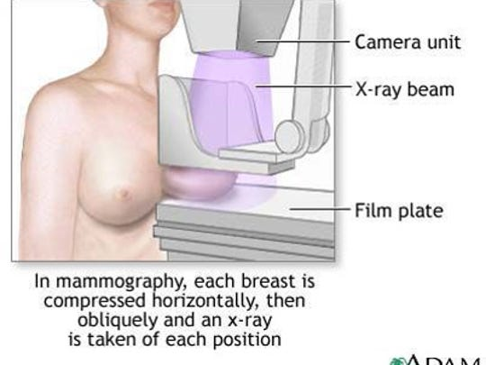 How a traditional mammogram is done, The Knoxville