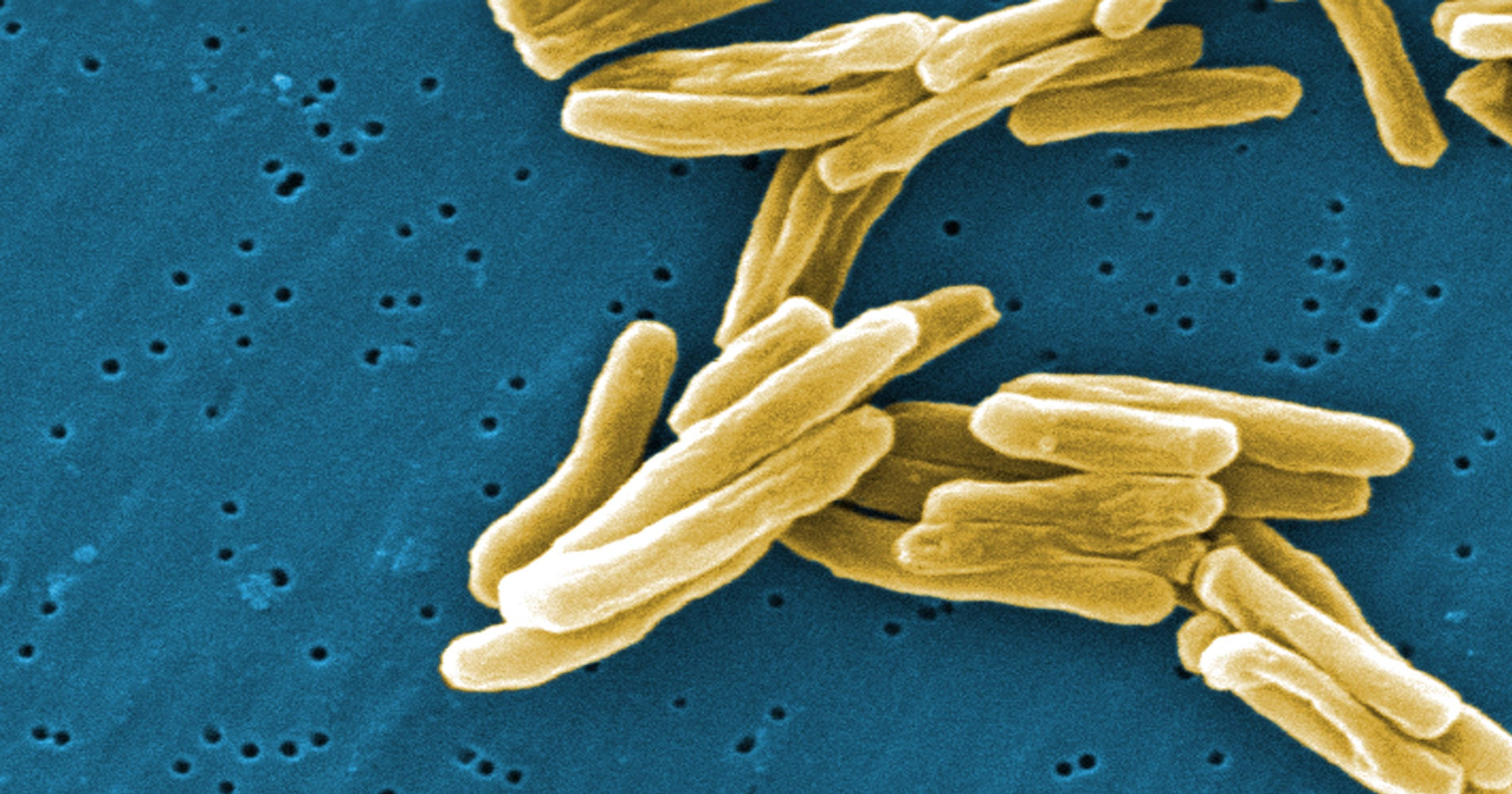 27 Kansas students test positive for tuberculosis