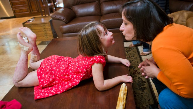 Lizzy Hendrickson, left, leans over to kiss her mom, Kristin, on Dec. 20, 2013, in their Phoenix home. She suffers from epidermolysis bullosa, also known as the butterfly disease, because her skin is extremely fragile. She recently stopped using bandages on her legs to protect her skin.