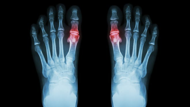 A form of arthritis that often surfaces suddenly with severe joint pain, gout is the result of too much uric acid in the body.