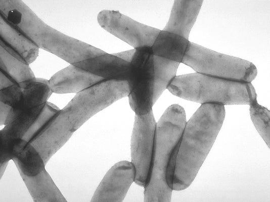 Legionella_pneumophila_01