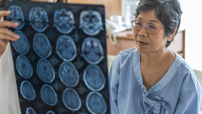 Dementia can affect a person's ability to recognize faces, because of a disturbance in the parietal and temporal lobe of the brain.