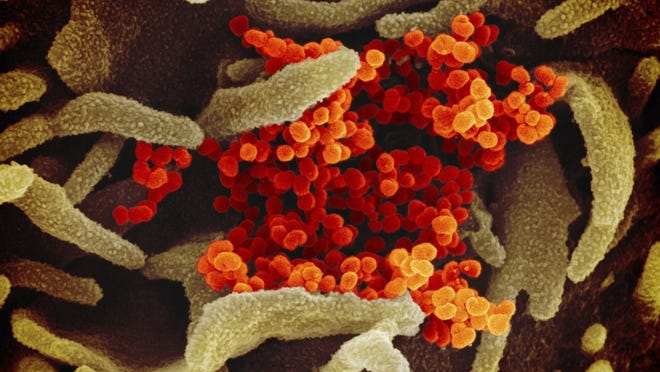 This undated electron microscope image made available by the U.S. National Institutes of Health in February 2020 shows the Novel Coronavirus SARS-CoV-2, orange, emerging from the surface of cells, green, cultured in the lab. Also known as 2019-nCoV, the virus causes COVID-19. The sample was isolated from a patient in the U.S.