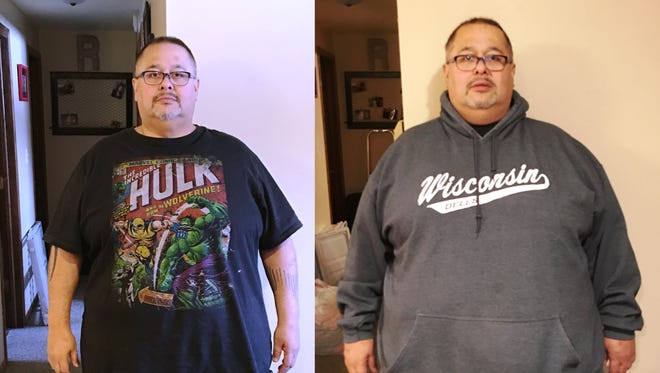 Ruben Rodriguez and his wife Melissa went through weight loss surgery together last January. Pictured is Ruben three months after her surgery on the left, and just prior to surgery on the right. He has lost 90 pounds in that time.