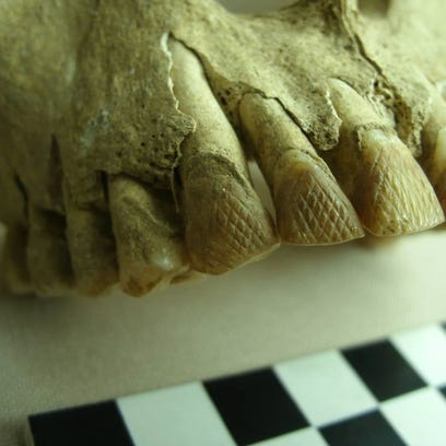 Drilled tiger shark teeth were found with the remains of a pre-latte woman, who died between the ages of 20 and 35.