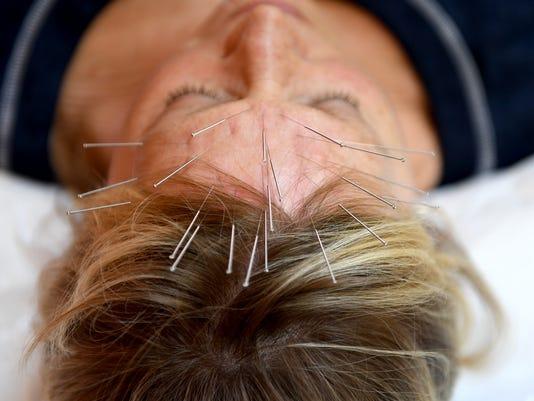 636367657830371745-JS-0727-Acupuncture-01.jpg