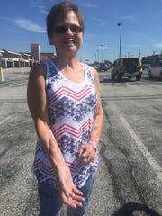 Joni Kauffman, who owned Cape Horn Family Restaurant in Red Lion, shows where surgeons removed tissue from her arm, which was transplanted to her tongue. She survived a recent bout with cancer.