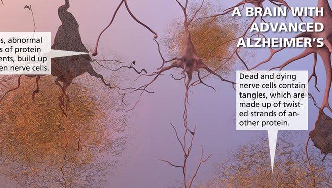 A brain with advance Alzheimer's
