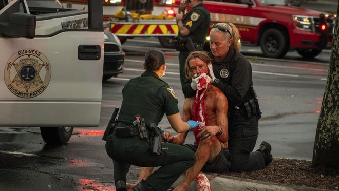 Palm Beach County Sheriff's Office deputy J. Falcon , left, and Business Security officer Jennifer Ryan help a man who was shot in the face in suburban West Palm Beach, Florida on Monday, August 17, 2020. Two people were wounded and three others were taken into custody.