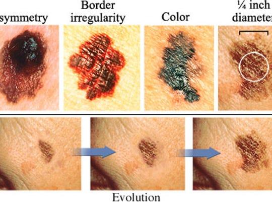 Evolution Of Melanoma Skin Cancer