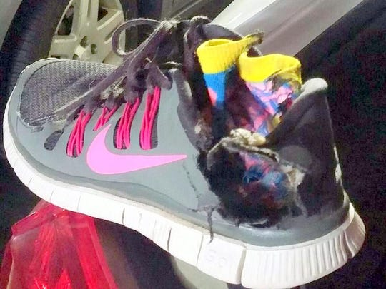 A look at Amy Castanon's shoe she was wearing the day she got struck by lightning.