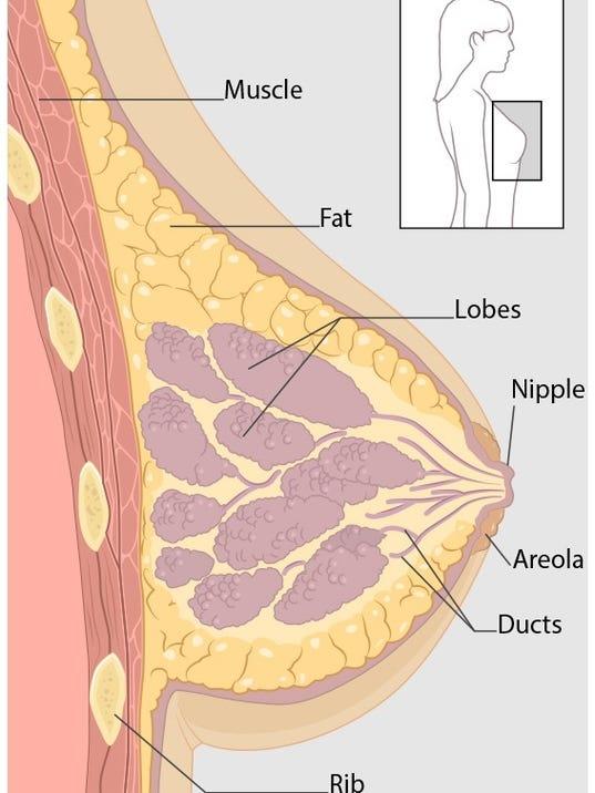 1005-breast-view-1.jpg