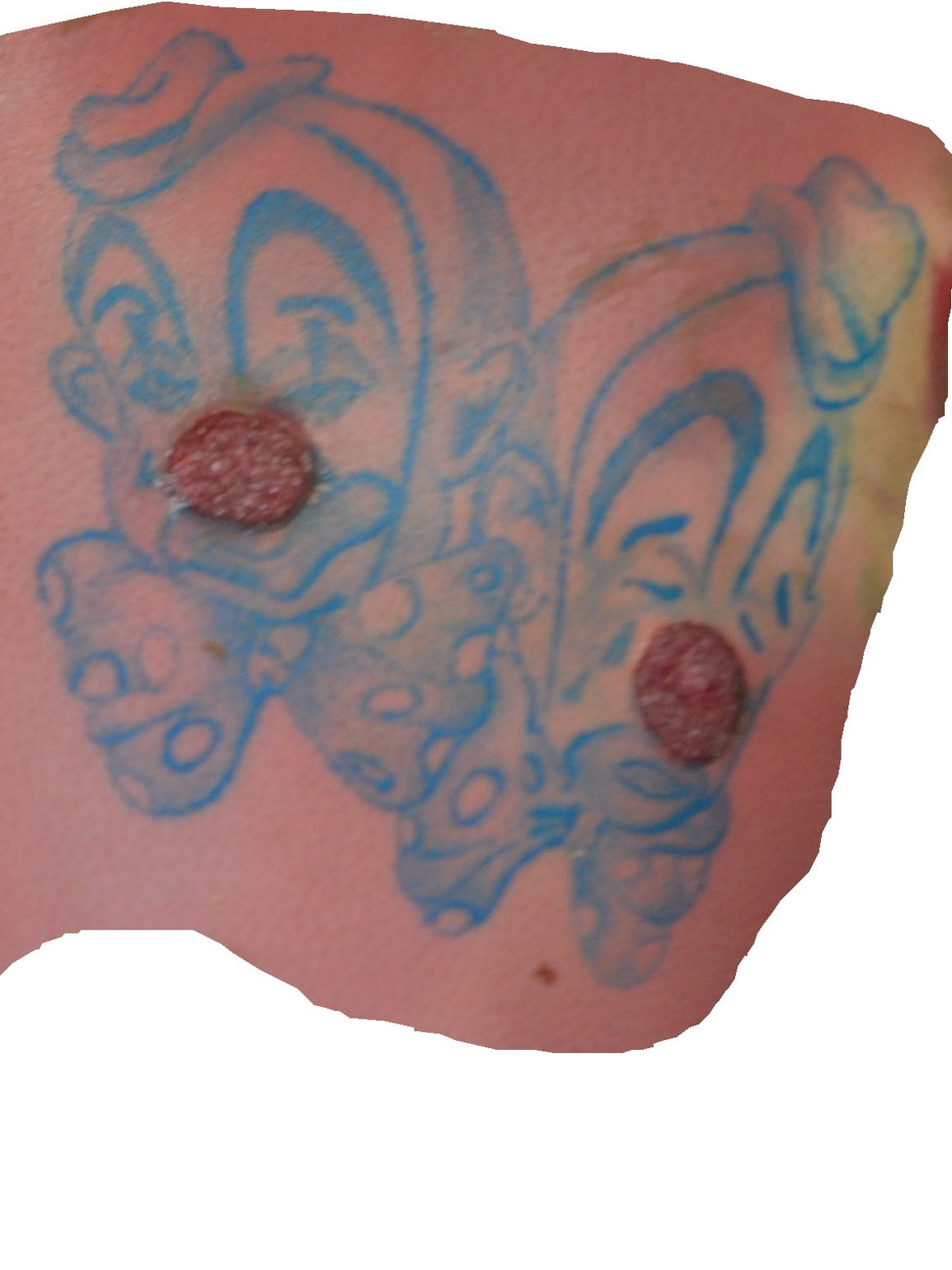 This distinctive clown tattoo was found on an unidentified