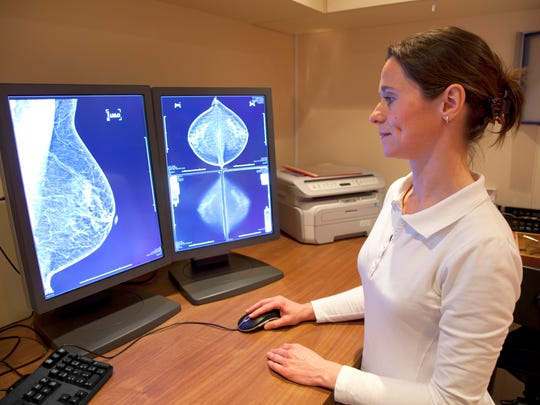 AI can also help detect breast cancer.