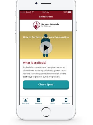 Shriners' new scoliosis app