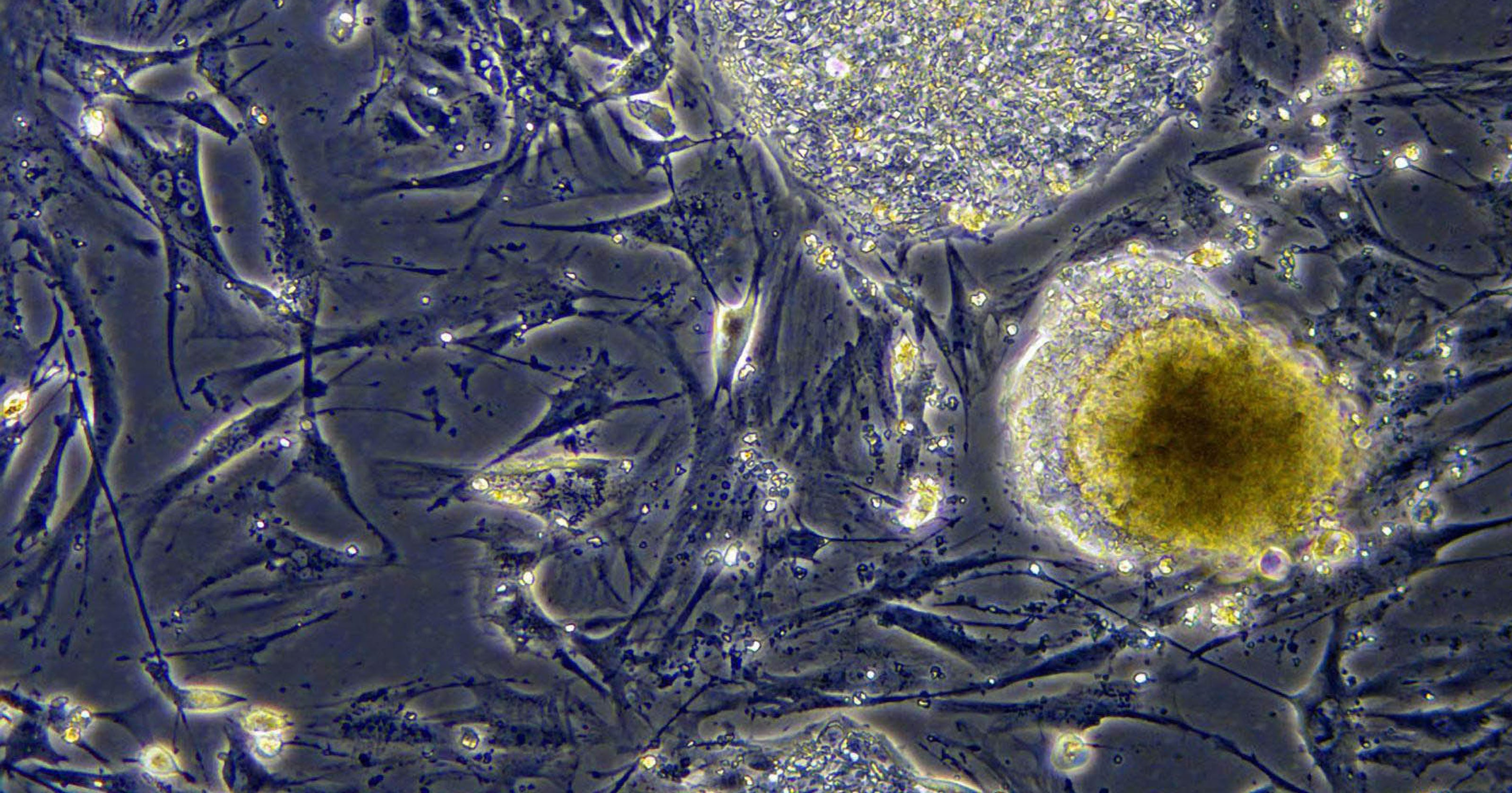 Two decades after stem cell breakthrough, help for patients