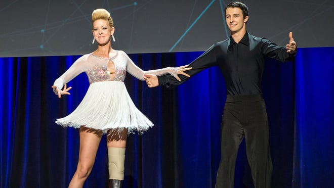 Dancer Adrianne Haslet-Davis, left, performs on stage with dancer Christian Lightner at the 2014 TED Conference, in Vancouver, British Columbia. Haslet-Davis took to the stage with a new prosthetic limb to perform for the first time since losing part of her left leg in the 2013 Boston Marathon bombing.