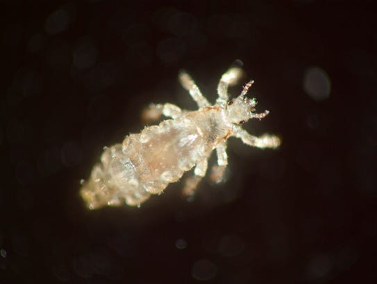 Head lice cannot fly, jump or swim.