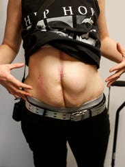 Mirenda Barrows shows the scars on her stomach where