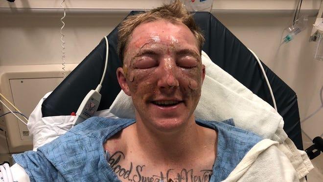 Brandon Feller recovers from burns he suffered Thursday in the Klamathon Fire.