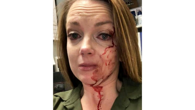 This May 6 selfie by Samantha Clarke shows her bruised and bloodied face after she was assaulted by a shopper at the retail store she manages in Modesto. Despite the abuse and occasional threats, Clarke says she never expected to be sucker-punched and knocked to the floor by an angry shopper as happened earlier this month.