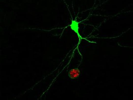 Infected neurons glow green, and the parasite living
