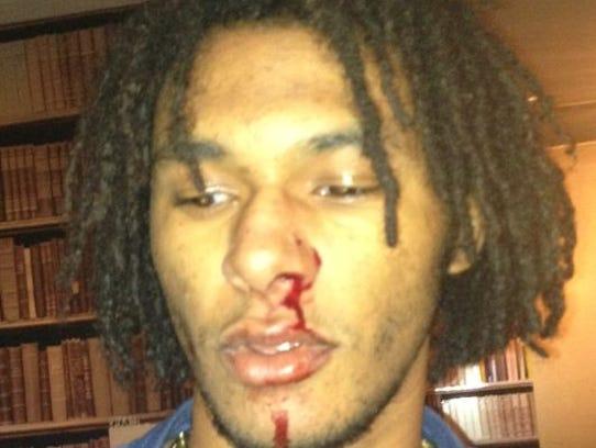 AP_Chris_Brown_Assault.2