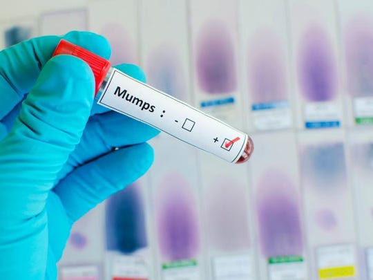 Delaware is seeing its first outbreak of the mumps in at least five years.